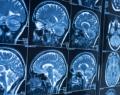 Les recherches d'Emmanuelle Wilhelm se concentrent sur le cerveau